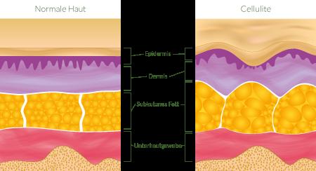 Vergleich von Gewebe mit und ohne Cellulite
